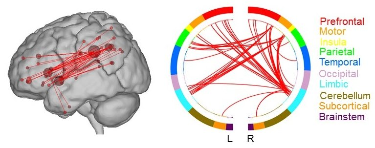 creative brain areas